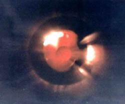 12 Nov. 1991 Grangemouth, Ecosse