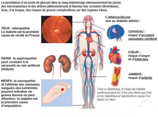b) Premières découvertes des pathologies liées au sucre