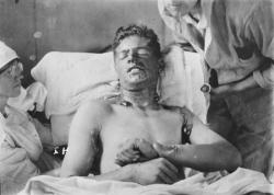 Soldat brulé par l'ypérite