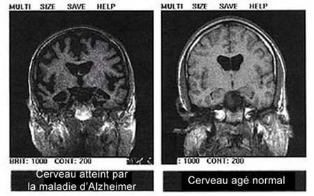 Comparaison des examens d'IRMf d'un sujet normal (à droite) et d'un sujet atteint de la maladie d'Alzheimer (à gauche)