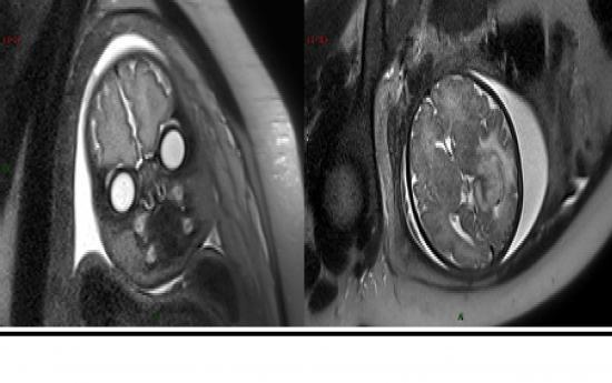 Deux images IRM de foetus