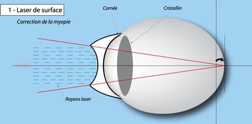 4caa11254d Le LASEK: Elle constitue une combinaison de 2 techniques tel que le LASIK  et le PRK pour réparer l'oeil non voyant mais au contraire de ces 2 autres  ...