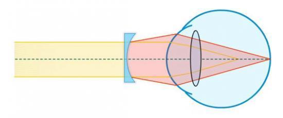 III - Les méthodes de correction de la myopie 0b77e6681f68